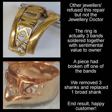 ring repair
