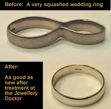 squashed-wedding-ring-repaired